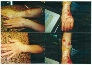 stages of the barman's hot oil burns over three months