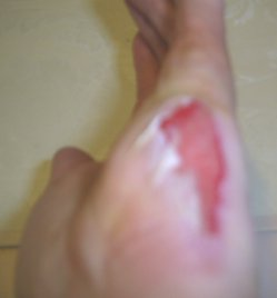 about two daays later the wound is healing well